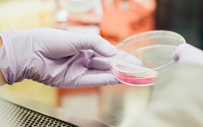 Epidemiologia della leucemia mieloide cronica