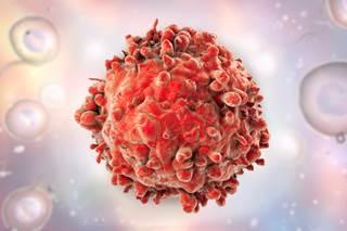 Qual è la differenza tra leucemia e linfoma