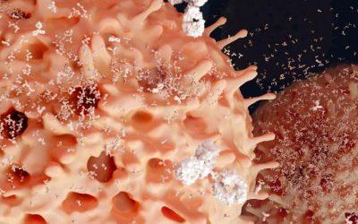 Pazienti con mieloma multiplo: in arrivo il test clonoSEQ®