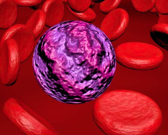 Leucemia Mieloide ecco i primi risultati.